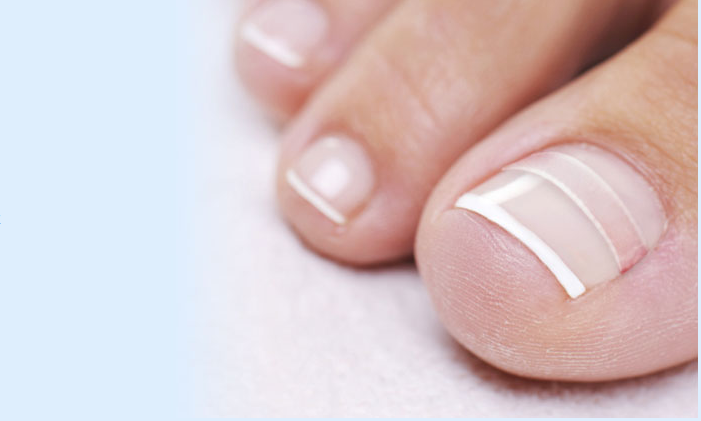 Treating Your Ingrown Toenail A Different Way Life Hacks Simplify