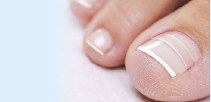 Treating your Ingrown Toenail a Different way